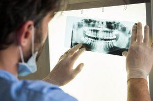 Closeup of dentist looking at dental x-ray plate