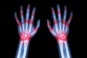 Hand injury compensation claims for UK victims, particularly for carpal tunnel syndrome claims.