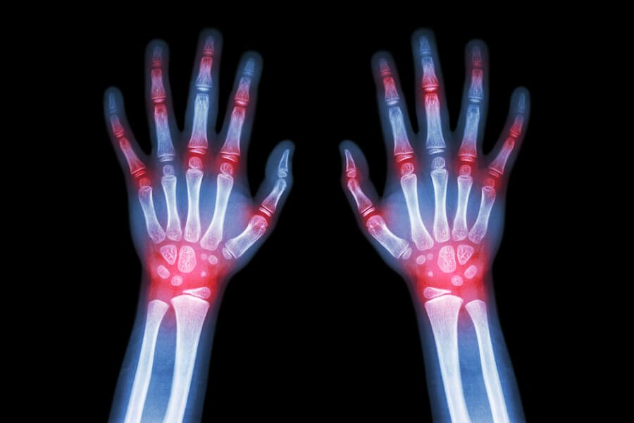 Rheumatoid Arthritis Gout